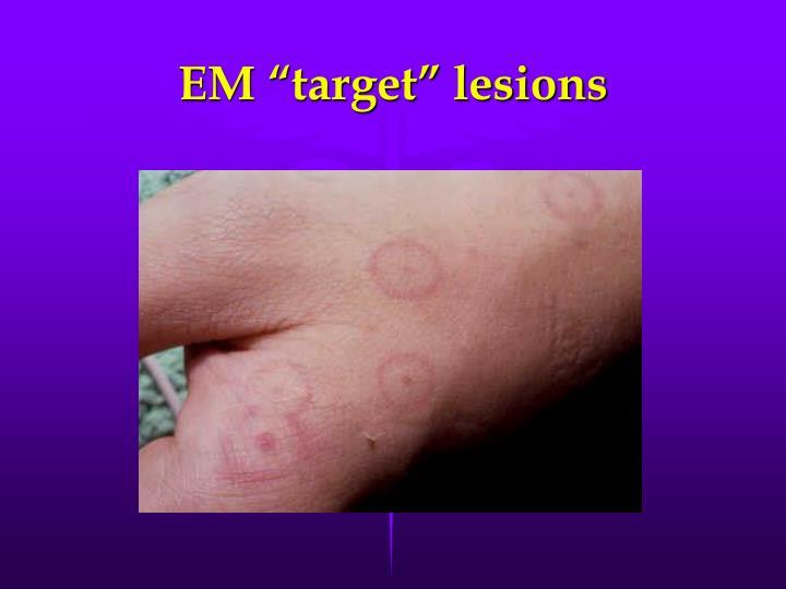 "EM ""target"" lesions"