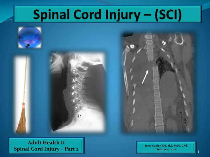 spinal cord injuries essay In addition, the clinic is conducting research utilizing non-invasive brain stimulation in conjunction with robotics therapy the researchers are working with patients with neurological disease causing upper body immobility and paralysis caused by stroke, spinal cord injury and traumatic brain injury.