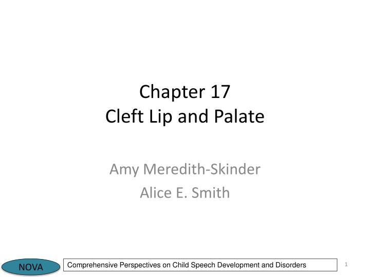 chapter 17 cleft lip and palate n.
