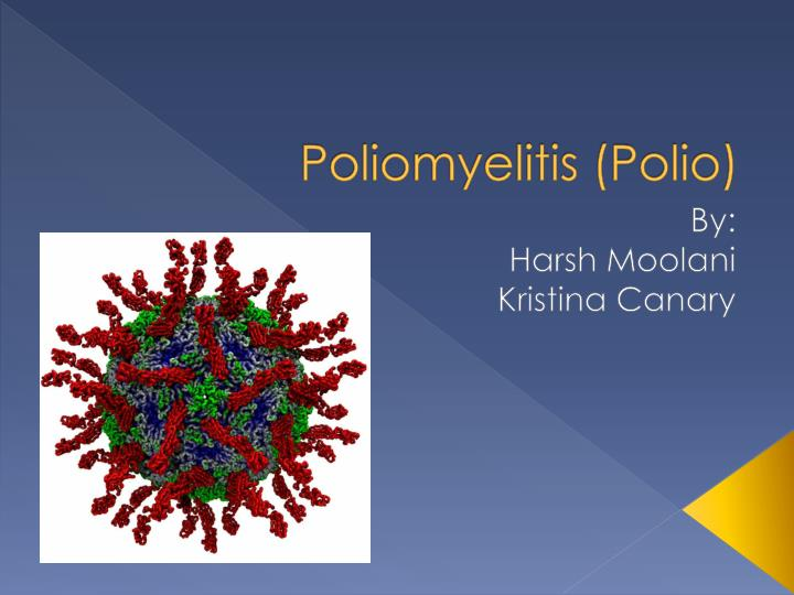 poliomylitis case essay The numbers of deaths and paralytic cases from polio, however, declined following introduction of effective vaccines united states for example has reported its last case of wild-virus polio in.
