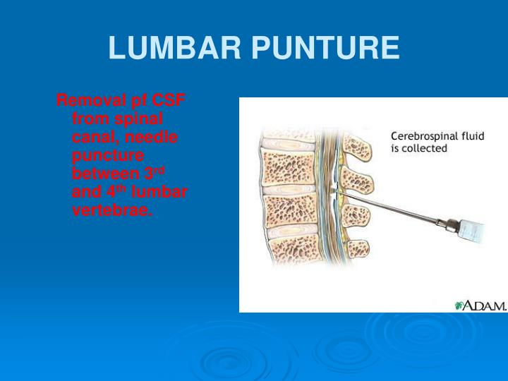 Removal pf CSF from spinal canal, needle puncture between 3