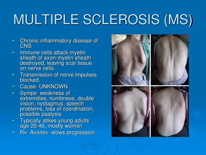 Chronic inflammatory disease of CNS