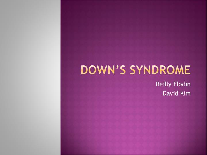 down s syndrome n.