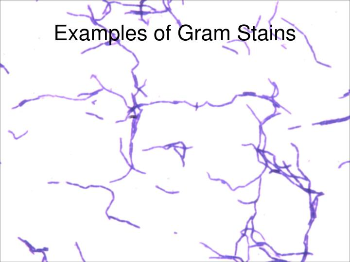 Examples of Gram Stains
