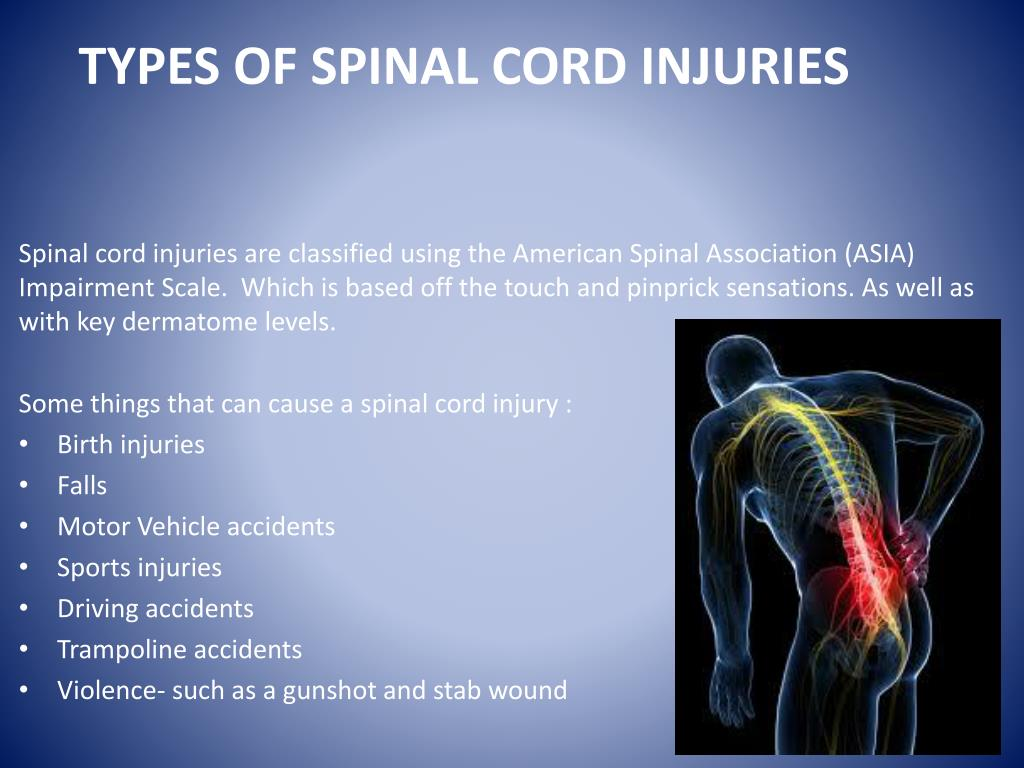 Top 10 Most Common Spinal Cord Injury Causes | SCI Progress