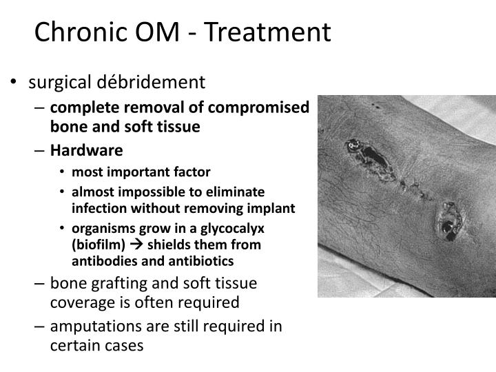 Chronic OM - Treatment
