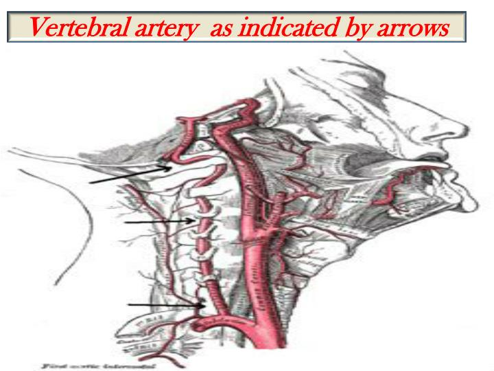 Vertebral artery  as indicated by arrows