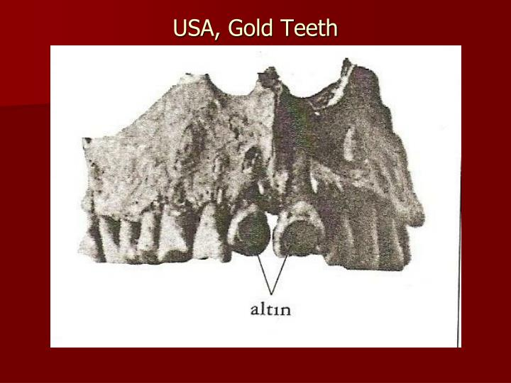 USA, Gold Teeth