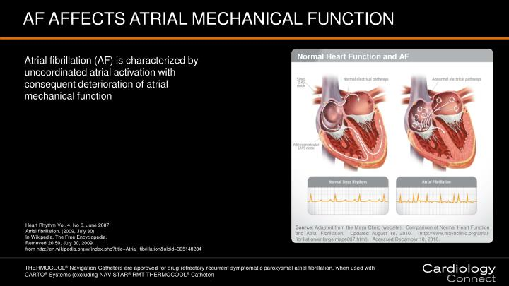 AF AFFECTS ATRIAL MECHANICAL FUNCTION