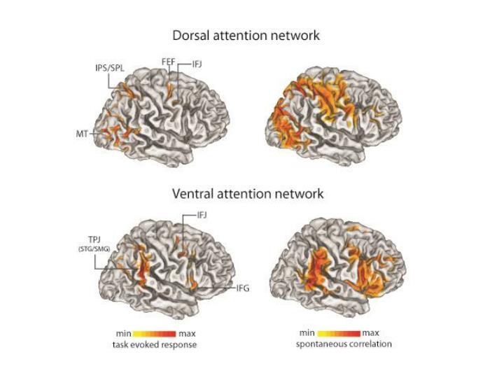 Tms eeg studies on the control of visual attention maurizio corbetta