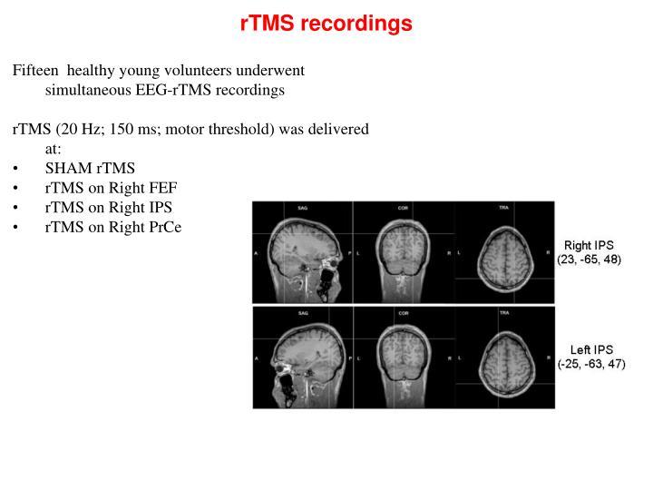 rTMS recordings