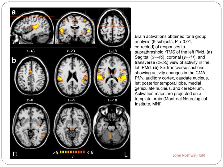 Brain activations obtained for a group analysis (9 subjects, P < 0.01, corrected) of responses to suprathreshold rTMS of the left PMd.