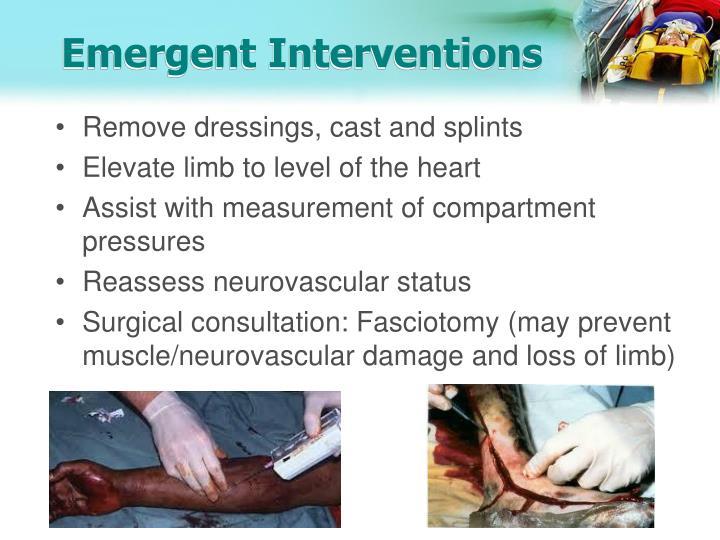 Emergent Interventions