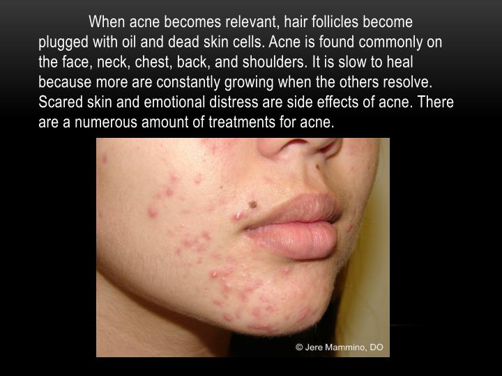 When acne becomes relevant, hair follicles become plugged with oil and dead skin cells. Acne is foun...