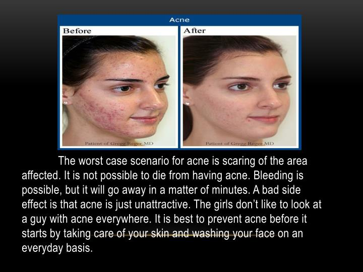 The worst case scenario for acne is scaring of the area affected. It is not possible to die from having acne. Bleeding is possible, but it will go away in a matter of minutes. A bad side effect is that acne is just unattractive. The girls don't like to look at a guy with acne everywhere. It is best to prevent acne before it starts by taking care of your skin and washing your face on an everyday basis.