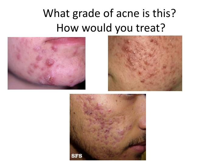 What grade of acne is this?