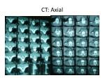 ct axial1