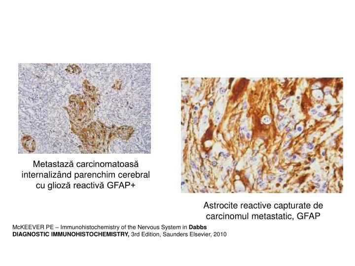 Metastază carcinomatoasă internalizând parenchim cerebral cu glioză reactivă GFAP+