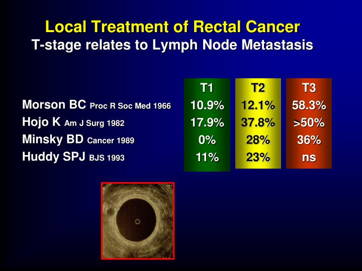 Local Treatment of Rectal Cancer