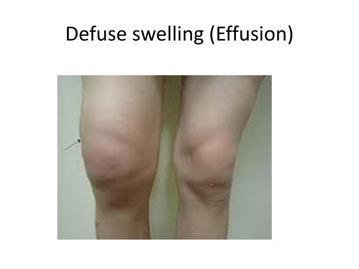 Defuse swelling (Effusion)
