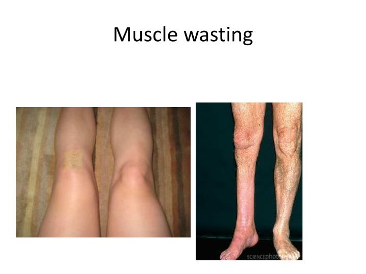 Muscle wasting