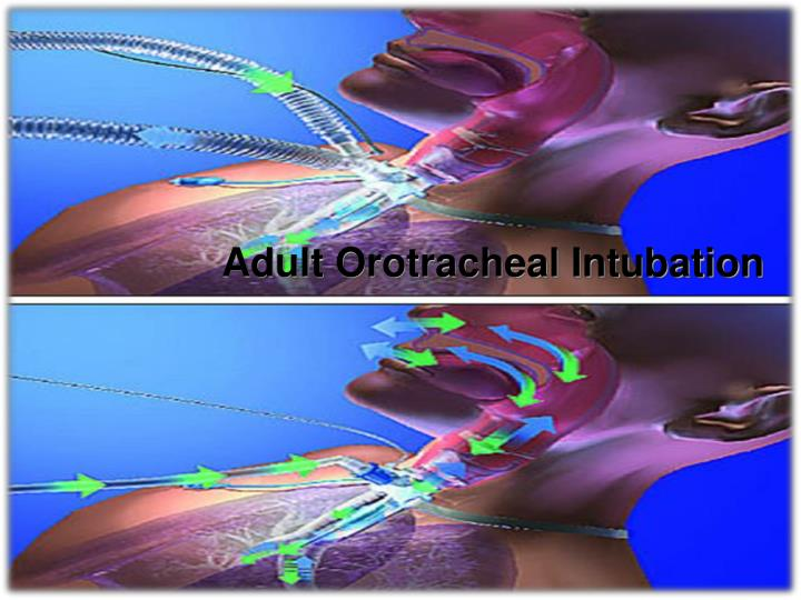 Adult Orotracheal Intubation