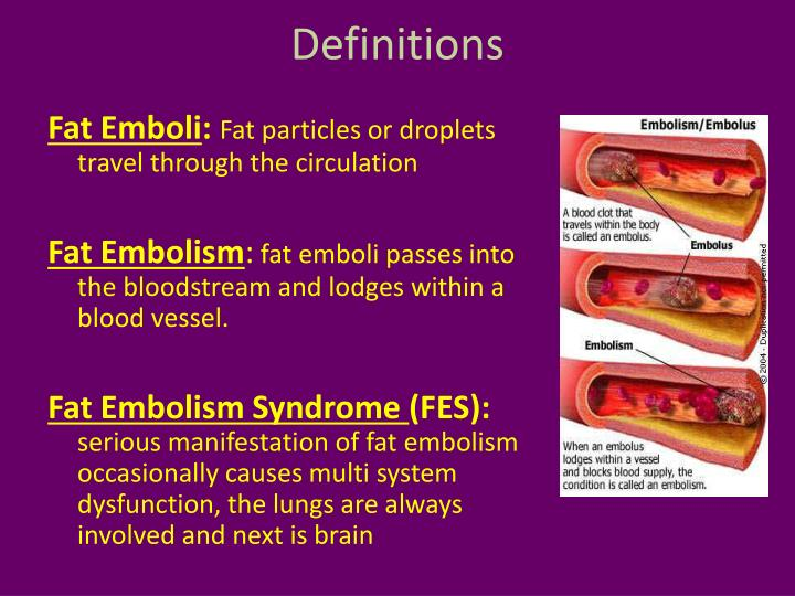 PPT Fat Embolism Syndrome PowerPoint Presentation ID 1957326
