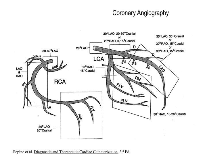 Ppt Coronary Anatomy Variants And Lesion Characteristics