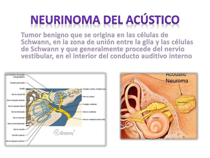 PPT - Tumores de oído PowerPoint Presentation - ID:1973173