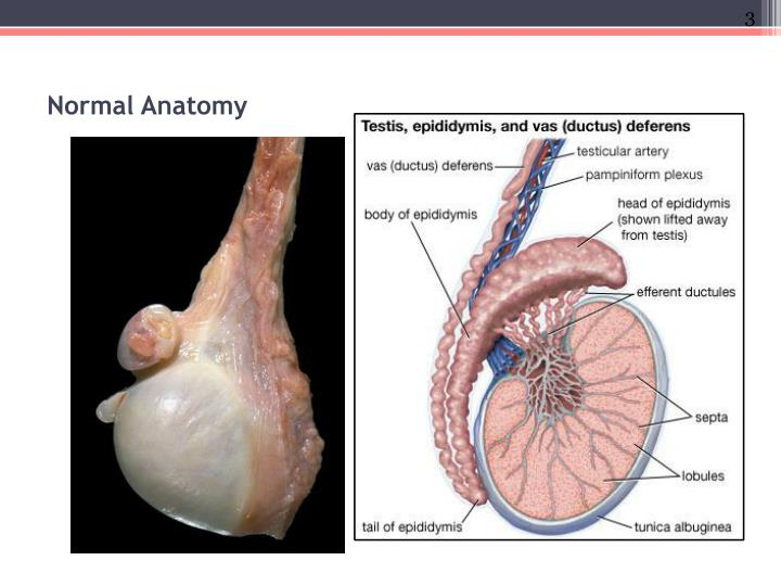 Ppt Testicular Pathology Powerpoint Presentation Id1975023