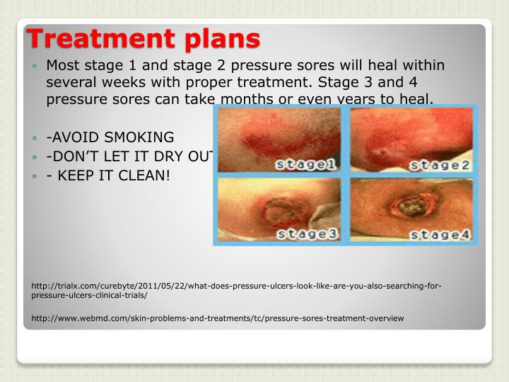 sores treatment and articles prevention stages bed pressure