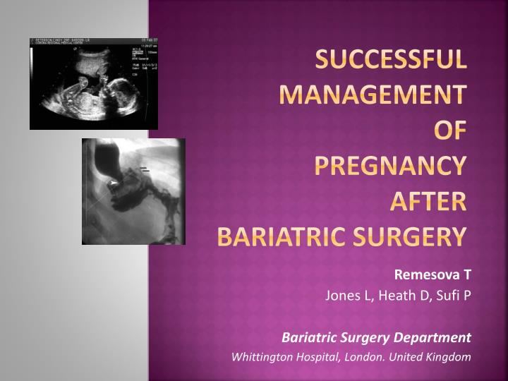 PPT - Successful Management of Pregnancy After Bariatric ...