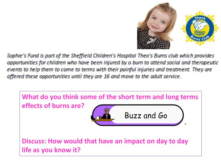 What do you think some of the short term and long terms effects of burns are?