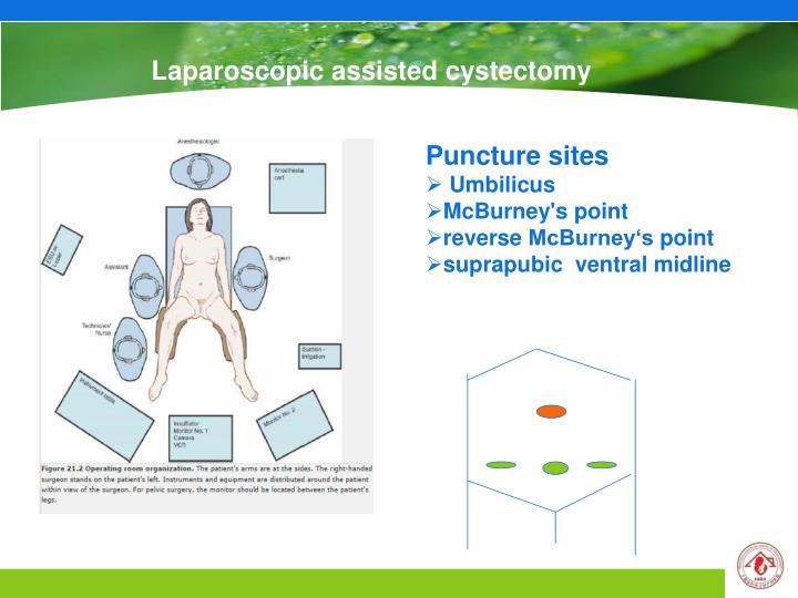 Laparoscopic assisted