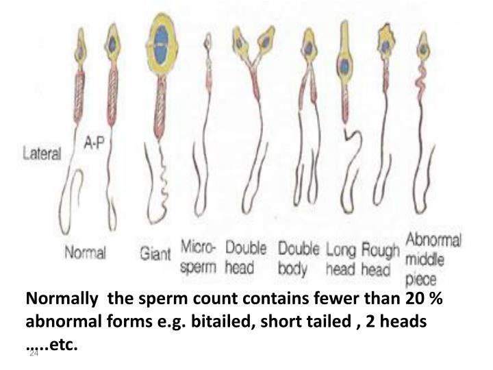 analysis sperm Semen count abnormal