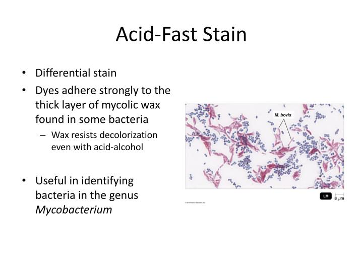 Acid-Fast Stain