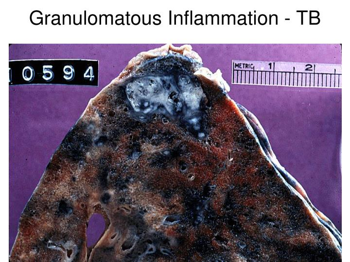 Granulomatous Inflammation - TB