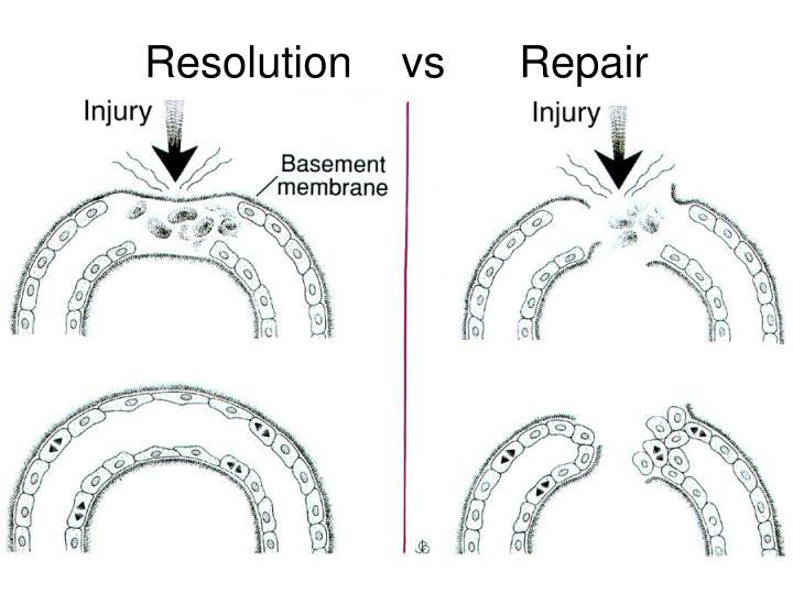Resolution    vs      Repair