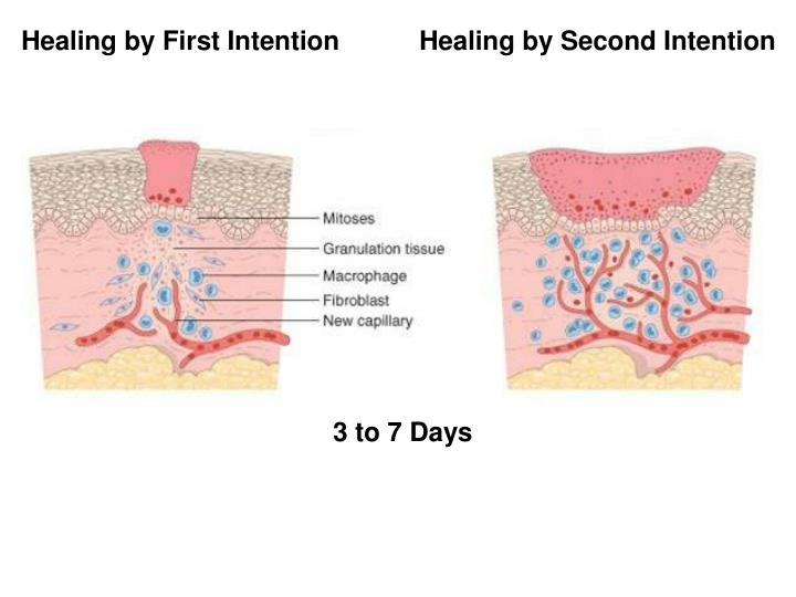 Healing by First Intention