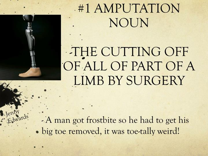 1 amputation noun the cutting off of all of part of a limb by surgery