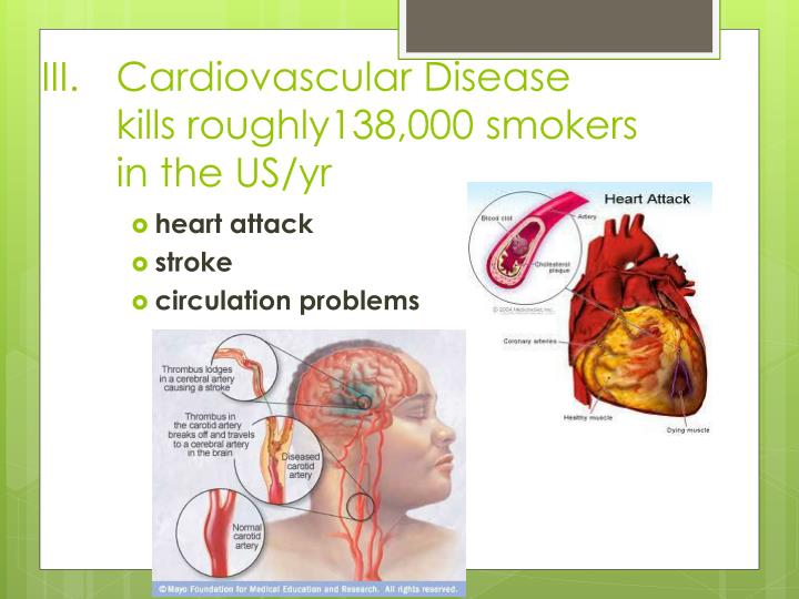 Cardiovascular Disease kills roughly138,000 smokers in the US/