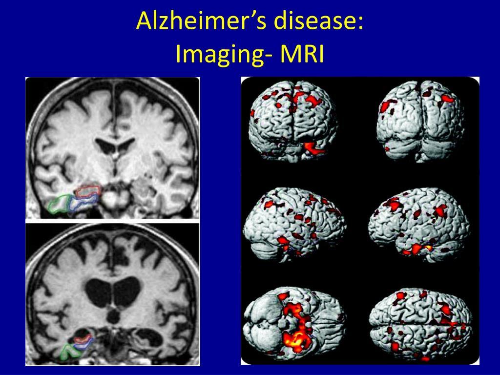 PPT - Dementia PowerPoint Presentation - ID:1994832
