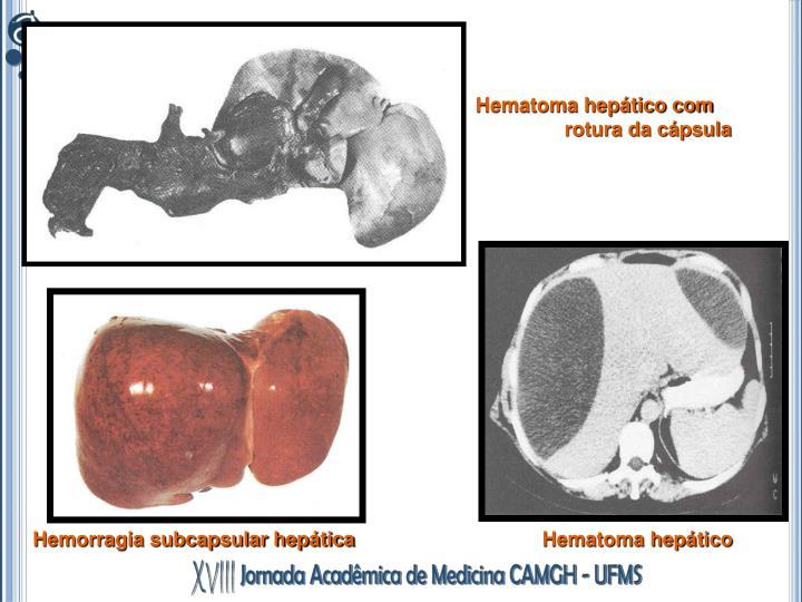 Hematoma hepático com