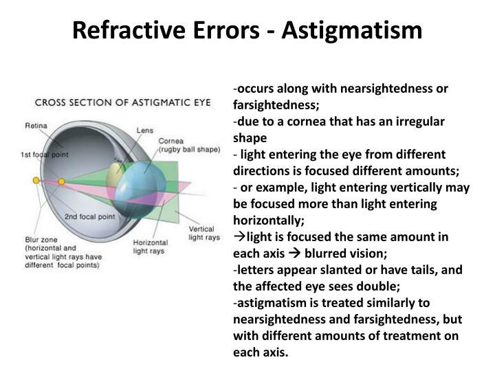 Refractive Errors - Astigmatism