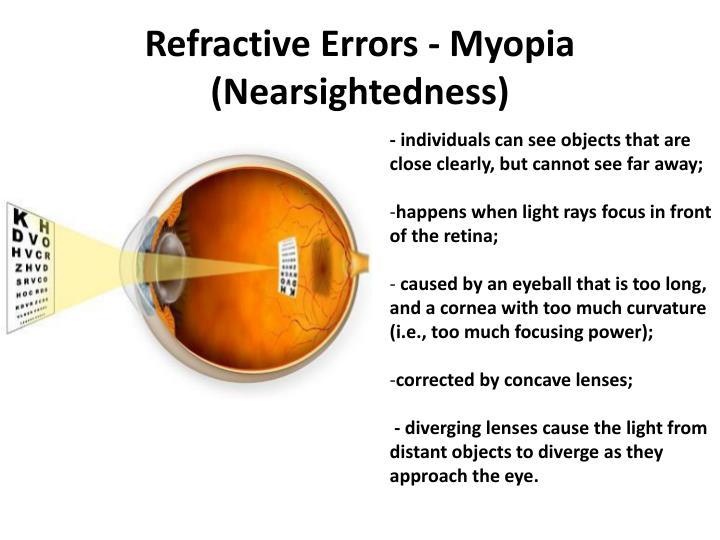 Refractive errors myopia nearsightedness