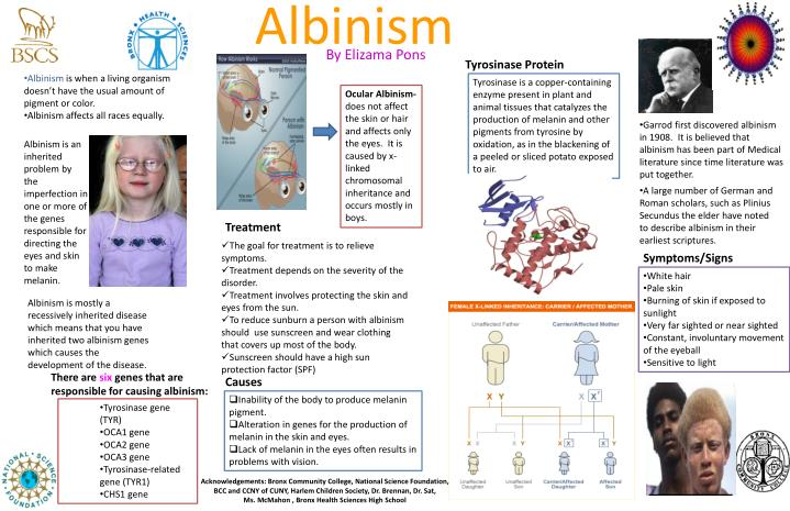 a research on albinism effects and risks My albinism research project covers albinism, a genetically inherited disease that effects the skin and eyes of the afflicted | see more ideas about albinism, people and protein.