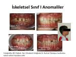 skeletsel s n f i anomaliler1