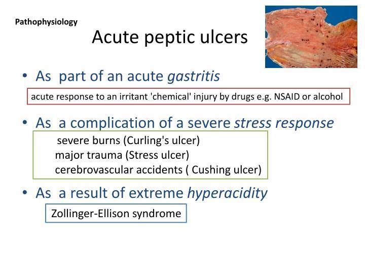 Acute peptic ulcers