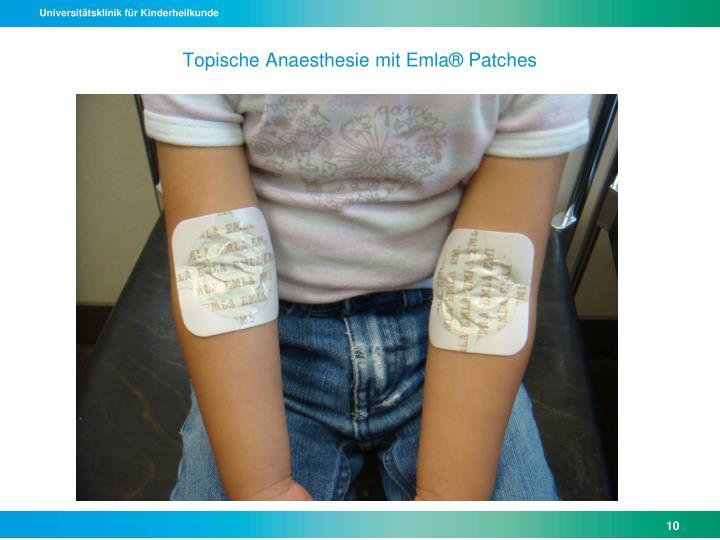 Topische Anaesthesie mit Emla® Patches