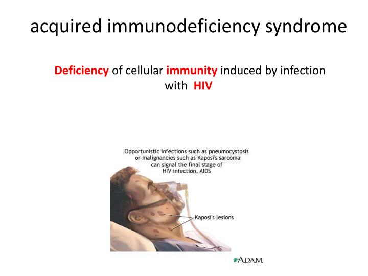 Acquired immunodeficiency syndrome deficiency of cellular immunity induced by infection with hiv